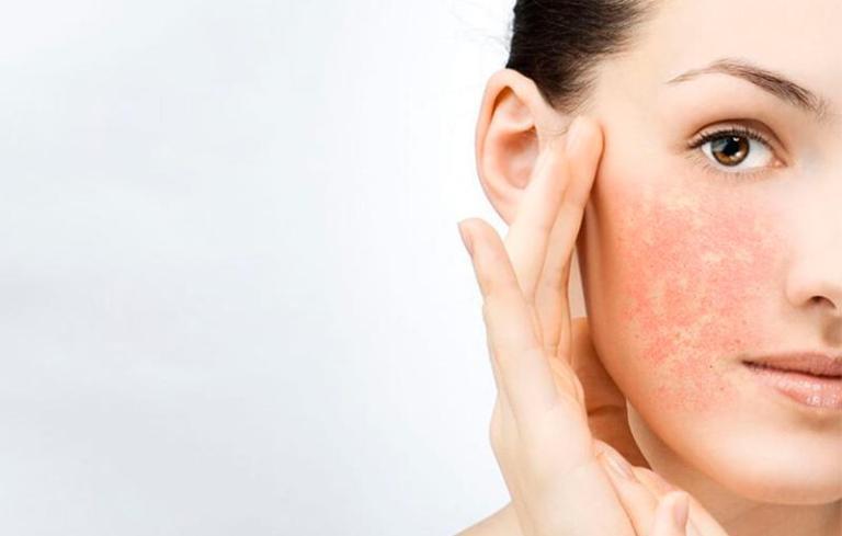 Что такое желтый пилинг для лица и как ухаживать после процедуры?